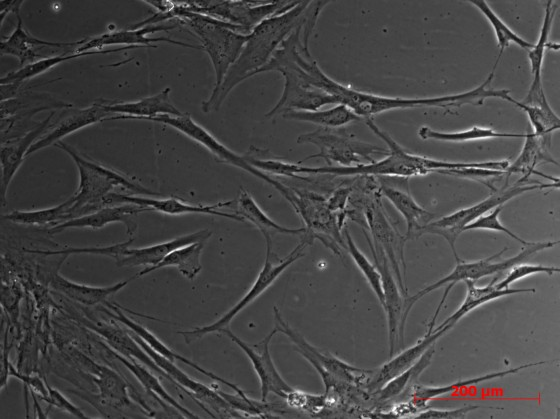 Human Bone Marrow MSCs